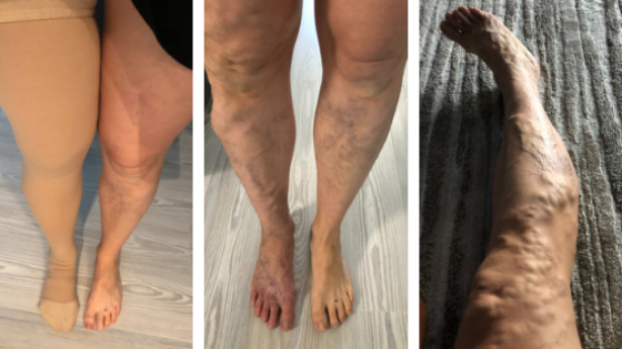 Painful Varicose Veins During Pregnancy - Ashley Sweeney RD
